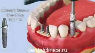 Лечение зубов красивая улыбка коронки протезирование импланты СГС Швейцария с абатмантом(Клиника European Clinic of Aesthetic Dentistry in Budapest