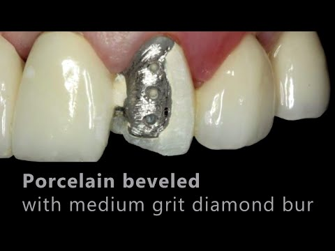 Porcelain Fused to Metal (PFM) Repair - Cosmedent, Inc.