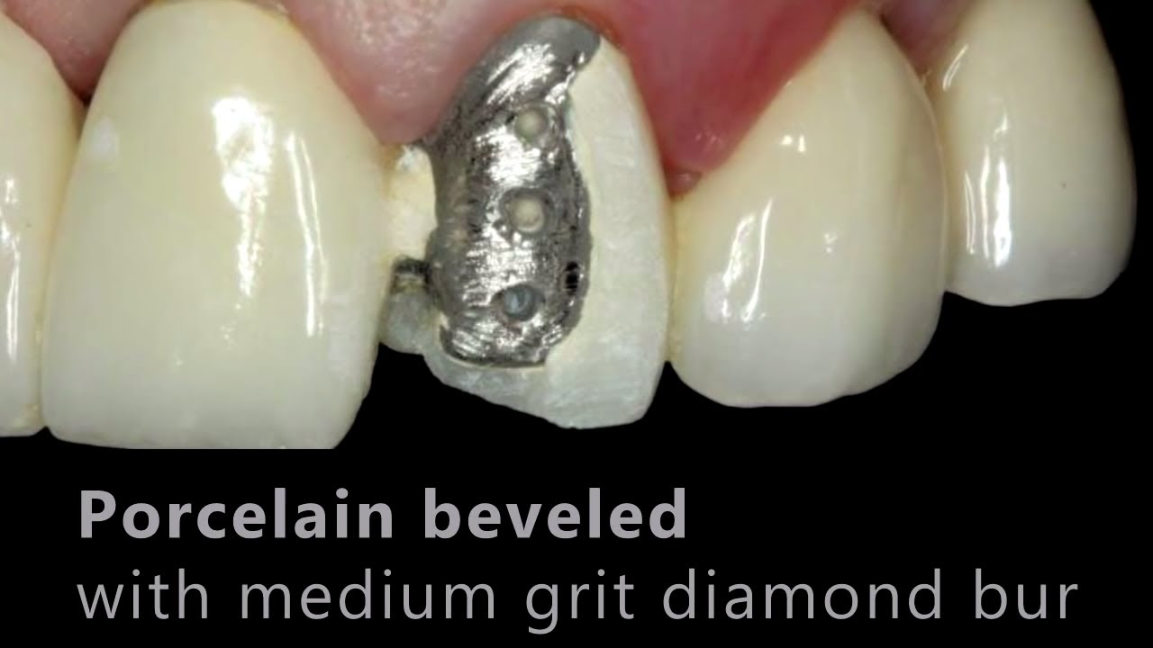 Porcelain Fused To Metal Pfm Repair Cosmedent Inc