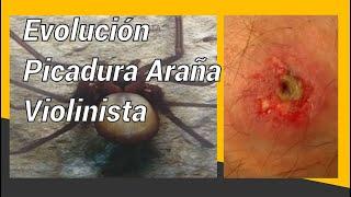 Picadura AraÑa Violinista