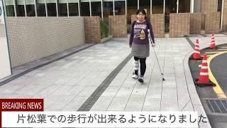 2017年8月22日に 変形性足関節症(くるぶし)の為、下位脛骨骨切り術の手...