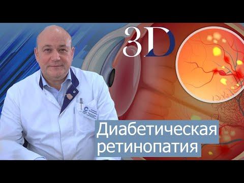 Диабет и зрение. Современное лечение диабетической ретинопатии.
