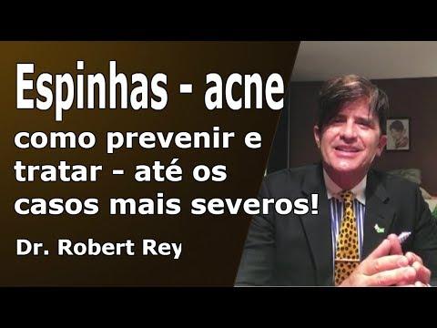 Dr. Rey – espinhas – acne – segundo vedar e viverversar já os casos mais severos!