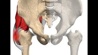 Aguda no da coxa dor aguda osso
