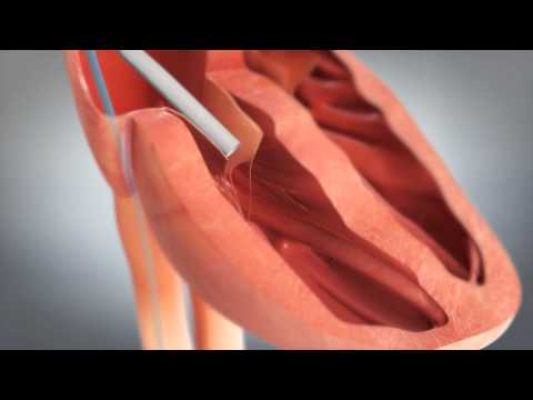 Mercy - St. Jude Medical - Animation of NanostimTM Leadless Pacemaker