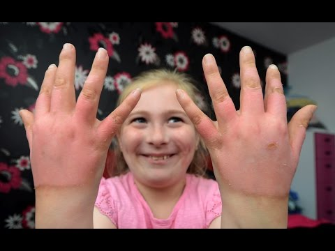 Girl Left With Third Degree Burns After Touching Toxic Plant