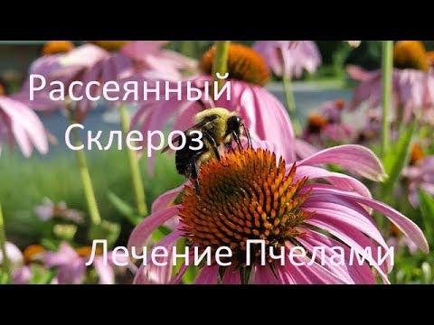 Лечение рассеянного Склероза-пчелы - YouTube