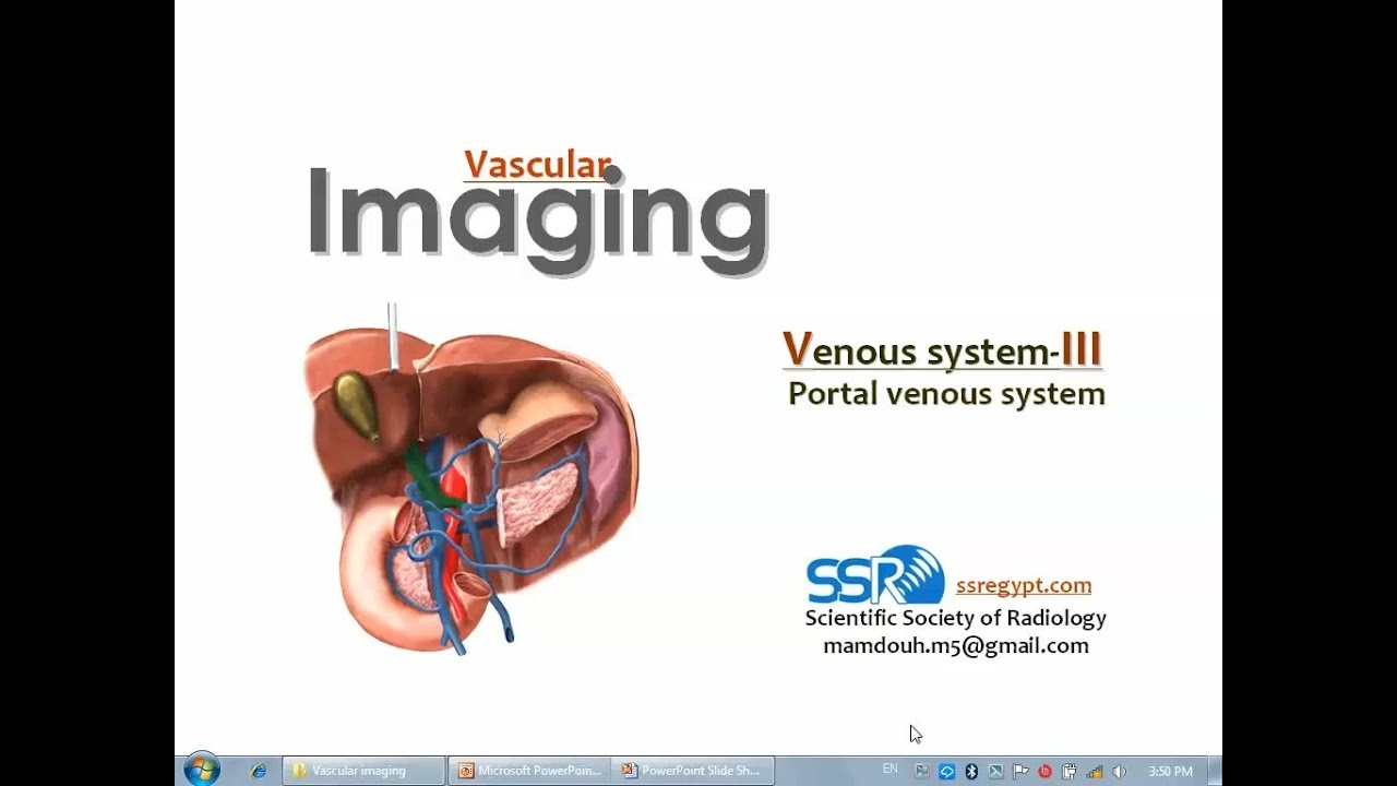 Imaging of VENOUS SYSTEM III - Prof Dr. Mamdouh Mahfouz (In Arabic ...