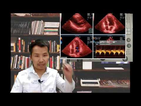 ຮຽນເຄຶ່ອງເອໂກ(echo) ຫຶຼ  Ultrasound ເປັນພື້ນຖານ