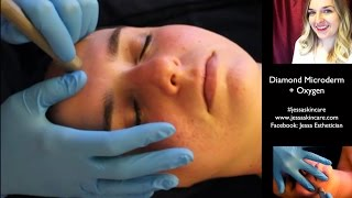 Aesthetician School Esthetician Education | Diamond Microdermabrasion + Oxygen Facial(http://www.jessaskincare.com Best Aesthetician School! Get your Esthetician Education with Jessa Esthetician. How to perform a Diamond Microdermabrasion + ..., 2014-12-18T09:01:04.000Z)