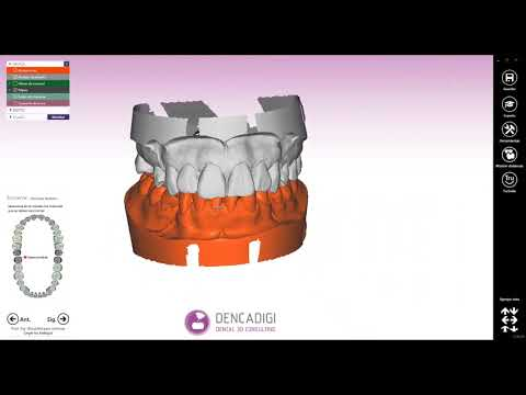 How to: Model Creator con réplica digital. Librerías de Dynamic Abutment Solutions