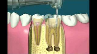 Worried about your Tooth Fillings? - Lakeway Center for Cosmetic and Family Dentistry Thumbnail