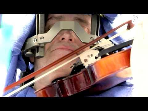 Deep Brain Stimulation - Awake Surgery - Mayo Clinic