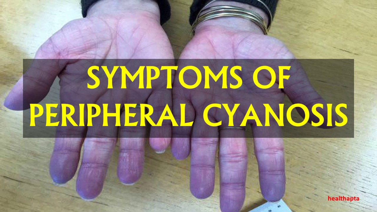 Cyanosis - A Serious Asthma Issue