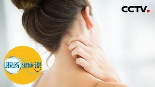 《职场健康课》别把湿疹不当病 20190625 | CCTV财经