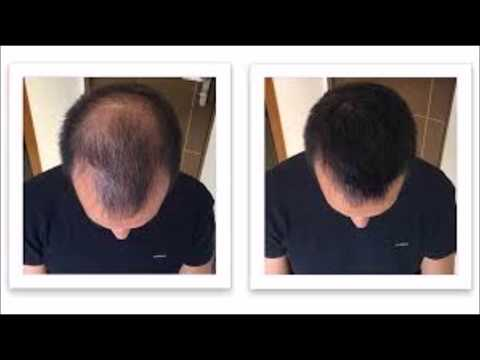 vichy-dercos-neogenic-hair-grow-treat-28s--hair-regain-treatment-copy
