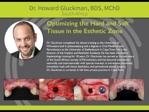 Osseodensification: Optimizing the Hard & Soft Tissue in the Esthetic Zone - Dr. Howard Gluckman