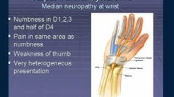 hqdefault - Peripheral Nervous System Neuropathy