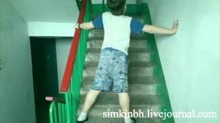 видео Атрофия мышц ног