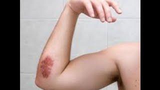 Natural home remedies Bruises