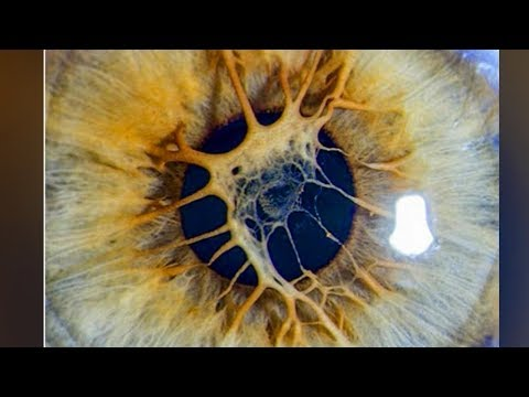 What's Wrong With My Eyes?  Persistent Pupillary Membrane (PPM)