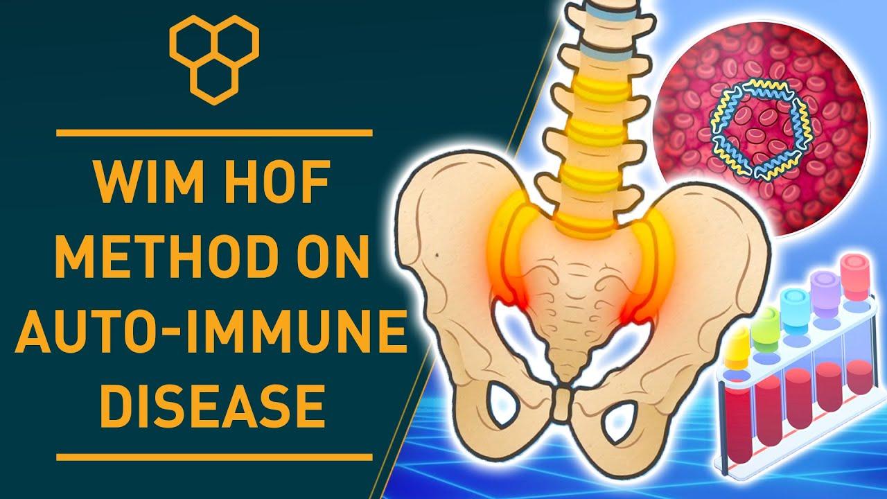 Studie jak WHM pomáhá proti artritidě