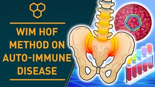 Wim Hof Method on Auto-Immune Disease | Science Research Results