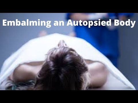 Embalming an autopsied body