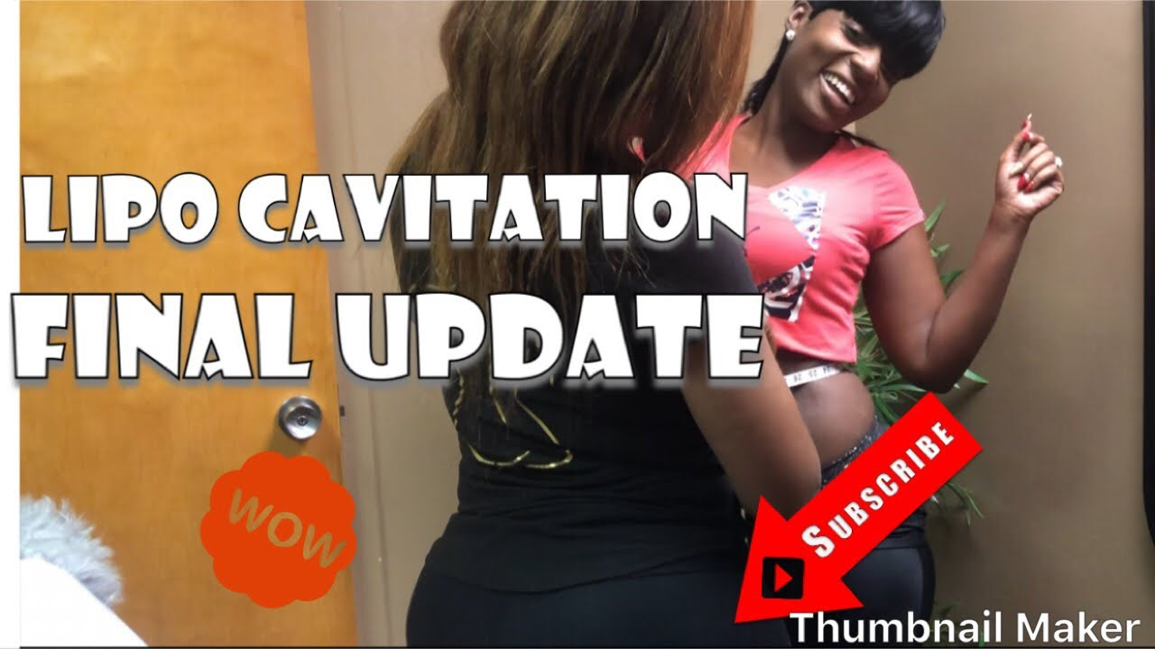 LIPO CAVITATION | FINAL TREATMENT