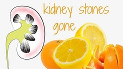 Get Rid of Kidney Stones with Orange Juice and Other Citrus Fruits