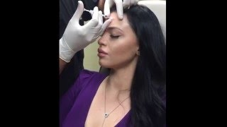 Botox Dysport BrowLift, Nasal Tip Lift, & Smooth Forehead Lines, 11