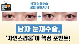 [모티브 성형외과] 남자 눈재수술, '자연스러움'이 핵…