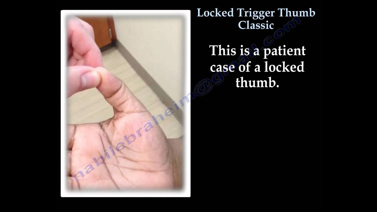 Locked Trigger Thumb Classic Everything You Need To Know Dr Nabil Ebraheim Youtube
