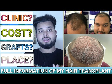 Repeat My 9 months best hair transplant result    best hair