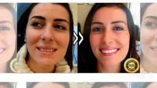 отбеливание зубов цены(http://rabotadoma.luzani.ru/karandash/ Эффективная система отбеливания зубов Если у вас большое потускнение зубов прим..., 2014-09-29T04:02:27.000Z)
