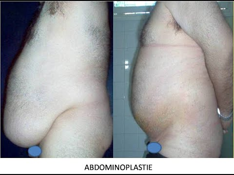 Liposuccion ou lipoaspiration ou liposculpture est l for Liposuccion interieur cuisses photos