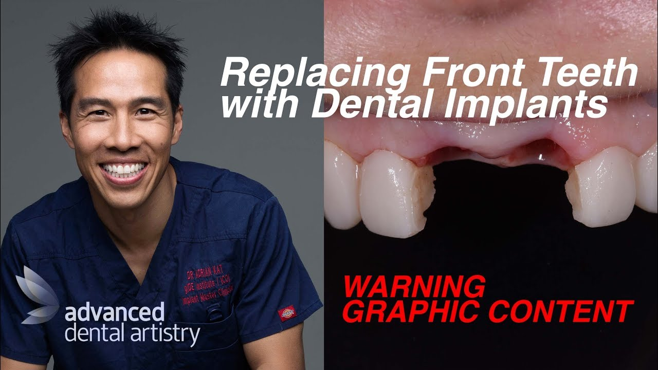 Dental Implant Quotes Replacing Missing Front Teeth With Dental Implants  Charlene