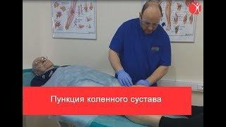 видео Лечение коленного сустава блокадой в медицинском центре «Стопартроз». Блокада колена