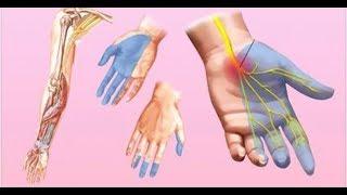Formigamento mãos braços e sentem
