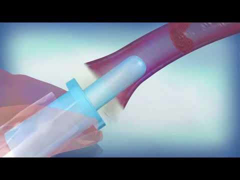 VaPro Plus Touch Free Female Hydrophilic Intermittent Catheter