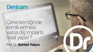 Çene Kemiğinde Kemik Erimesi Varsa Diş Implantı Nasıl Yapılır? - Prof. Dr. Serhat Yalçın