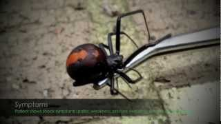 Red Back Spider  First Aid & Symptoms