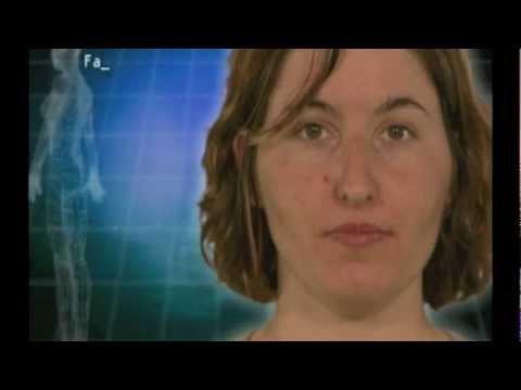 Swan Kathy after liposuction, boob job, nose job, brow lift, corner lip lift, etc. by Dr Haworth