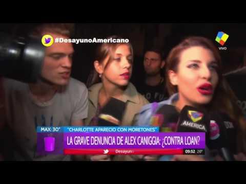 Loan habló de los moretones de Charlotte Caniggia y su debilidad por el alcohol