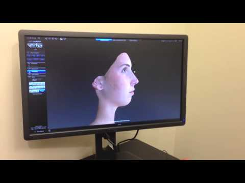 Rhinoplasty and the VECTRA 3D Imaging System