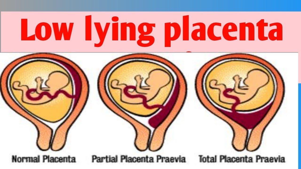 Is Posterior Placenta Dangerous Or A Complication For Vaginal Birth Dr Jyoti Kala By Doctors Circle World S Largest Health Platform