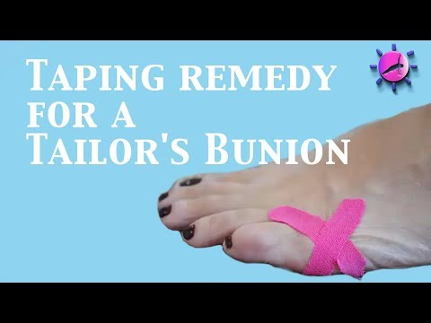 Taping Remedy For A Tailor's Bunion/Bunionette
