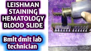 Leishman stain practical