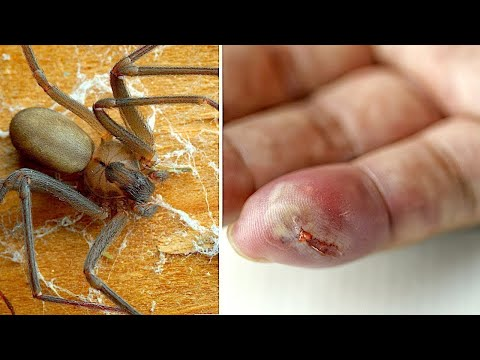 10 Most Dangerous Animals in the U.S.