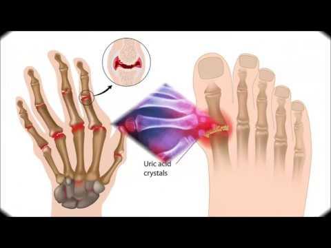 Rheumatoid arthritis. Treatment. Medications